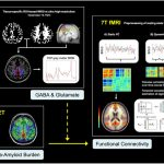 Brain-connectivity-in-healthy-aging-and-Alzheimer's-Disease