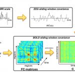 Dynamic-Functional-connectivity-in-Epilepsy-