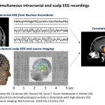 Electrical-Neuroimaging